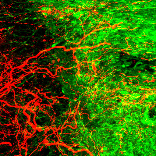 <b>CST axons entering into the graft (Green, graft; Red, CST axon)</b>  [copyright: Ken KADOYA]