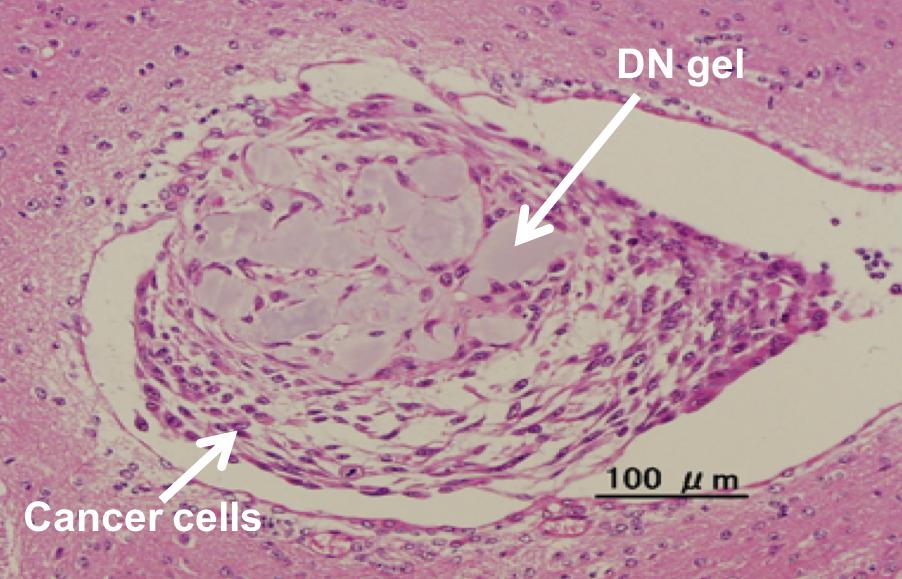 Figure3_Tumor formation