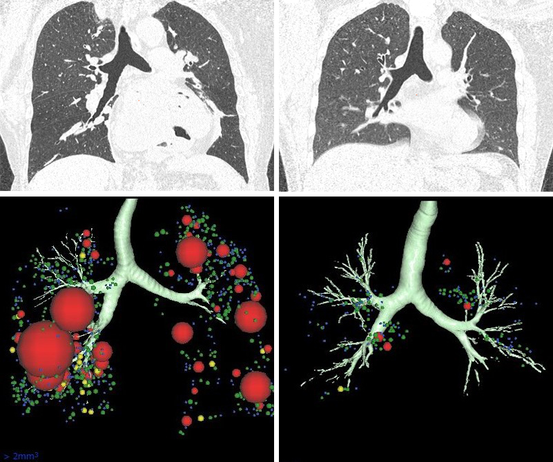 Images of Lung CT scans and 3D models
